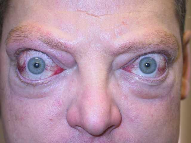 Экзофтальм: причины, симптомы, диагностика, лечение