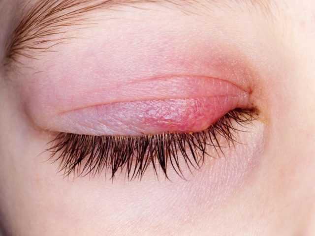 Ячмень на глазу: виды, причины, лечение