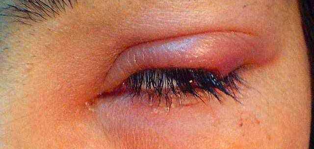 Ячмень на глазу: лечение