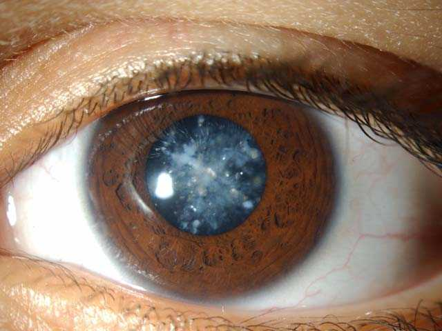 Катаракта: виды, симптомы, лечение и профилактика