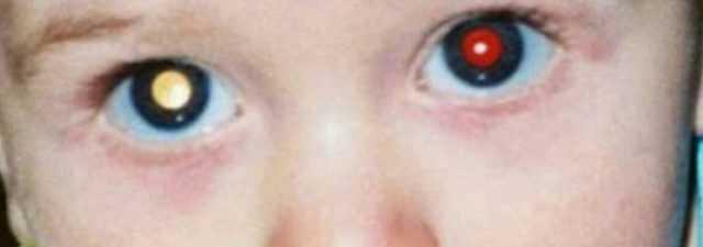 Ретинобластома: симптомы проявления