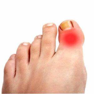 Чем лечить ушиб пальца на ноге