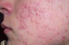 Причины появления гнойных прыщей на лице и голове