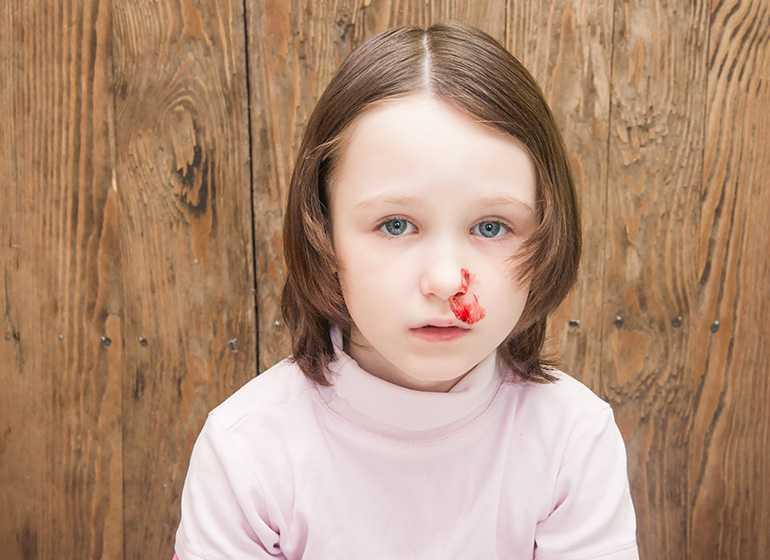 Почему кровь идет из носа, как остановить носовое кровотечение