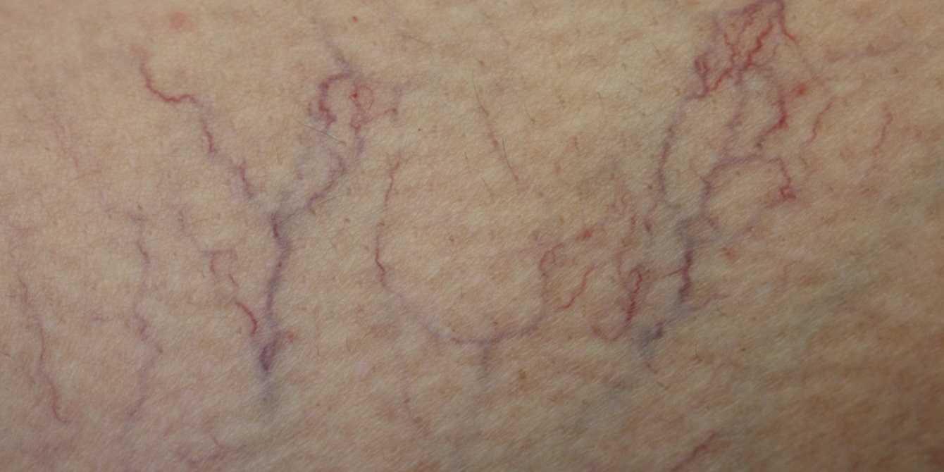 Кожные заболевания от проблем с венами