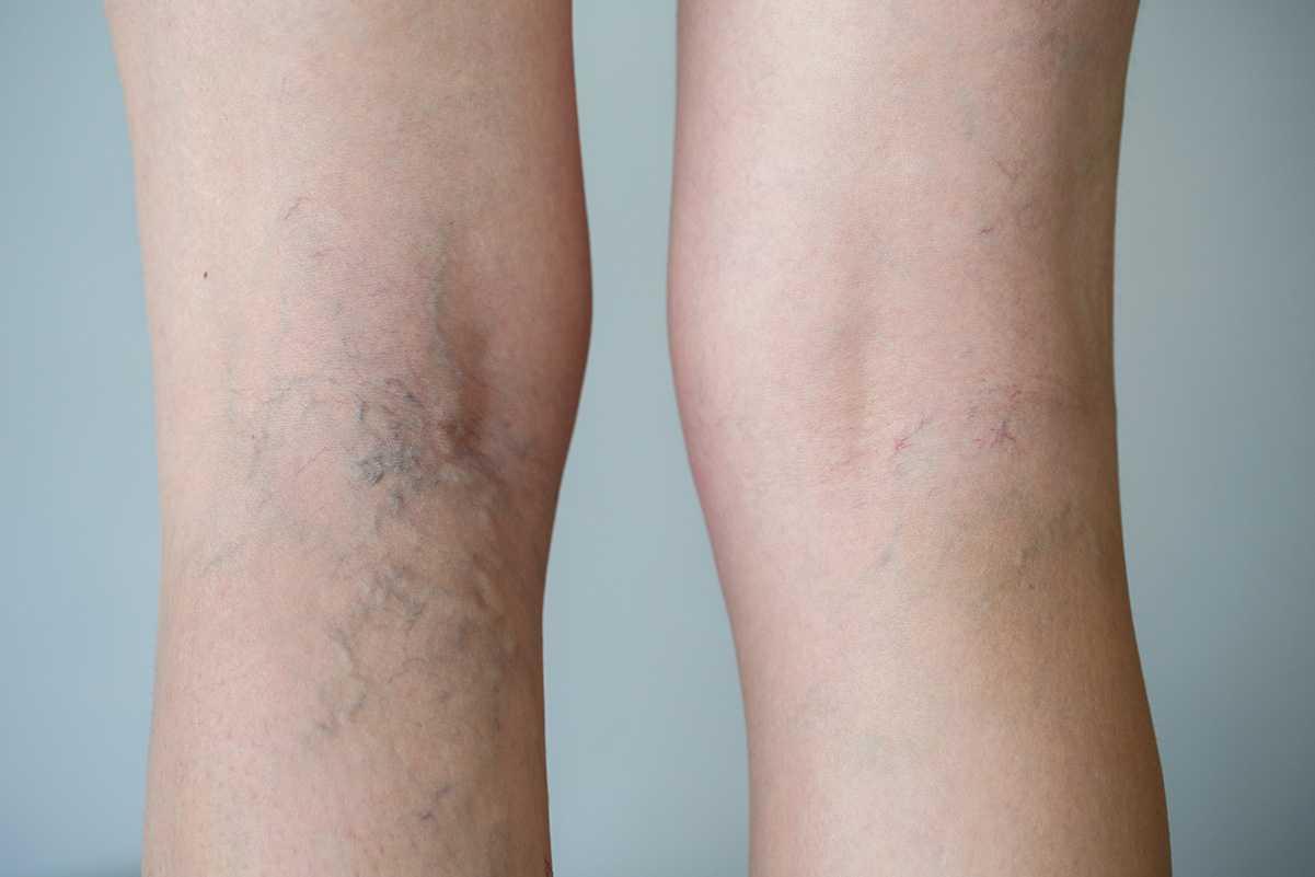 Ноги после варикоза