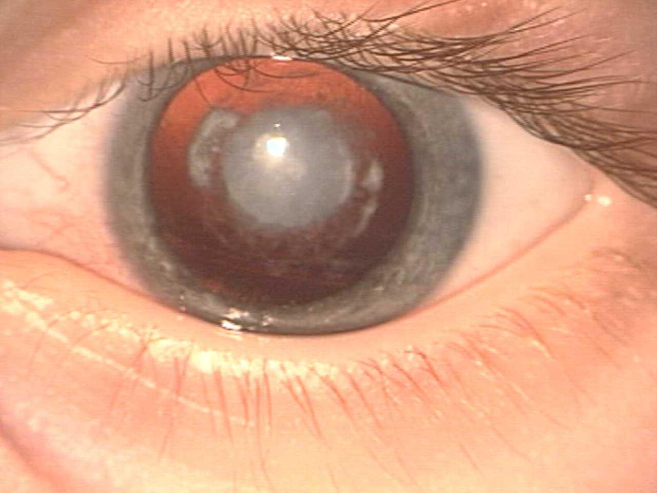 Симптомы и диагностика катаракты