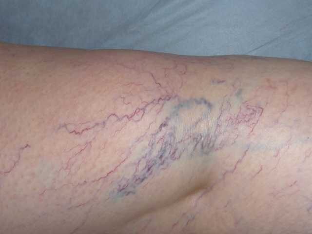 Устранение капиллярной сетки на ногах