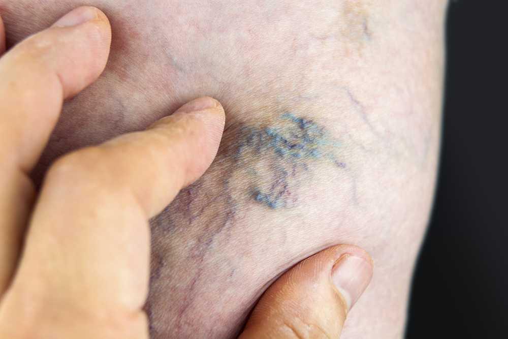 Видимые последствия варикозного заболевания