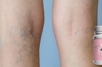 Венотоники при варикозе ног