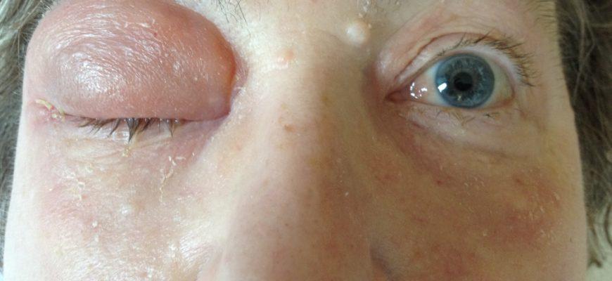 Абсцесс симптомы заболевания