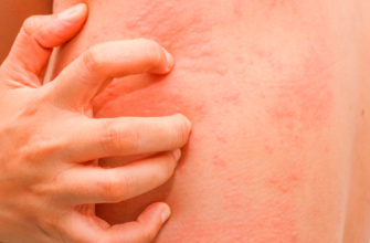 Какие бывают дерматиты