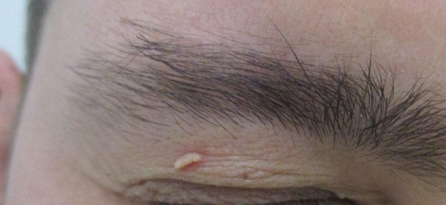 Кондиломатоз - остроконечные кондиломы у мужчин, место локализации