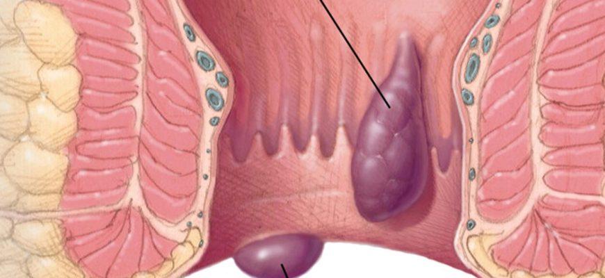 Лечение геморроя внутреннего, наружного, острого