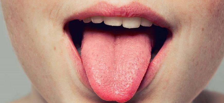 Лечение кондилом во рту