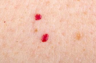 Почему появляются папилломы на теле?