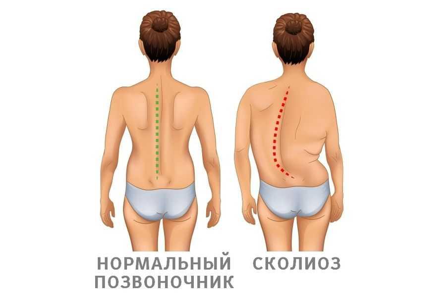 Искривление позвоночника симптомы и признаки
