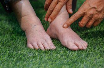 Как снять отек ног народным методом