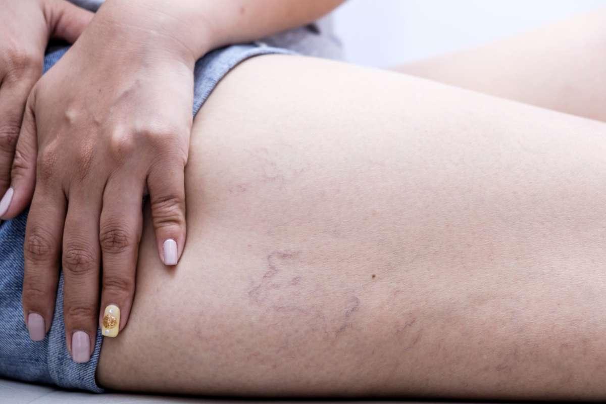 Симптомы варикозного расширения вен