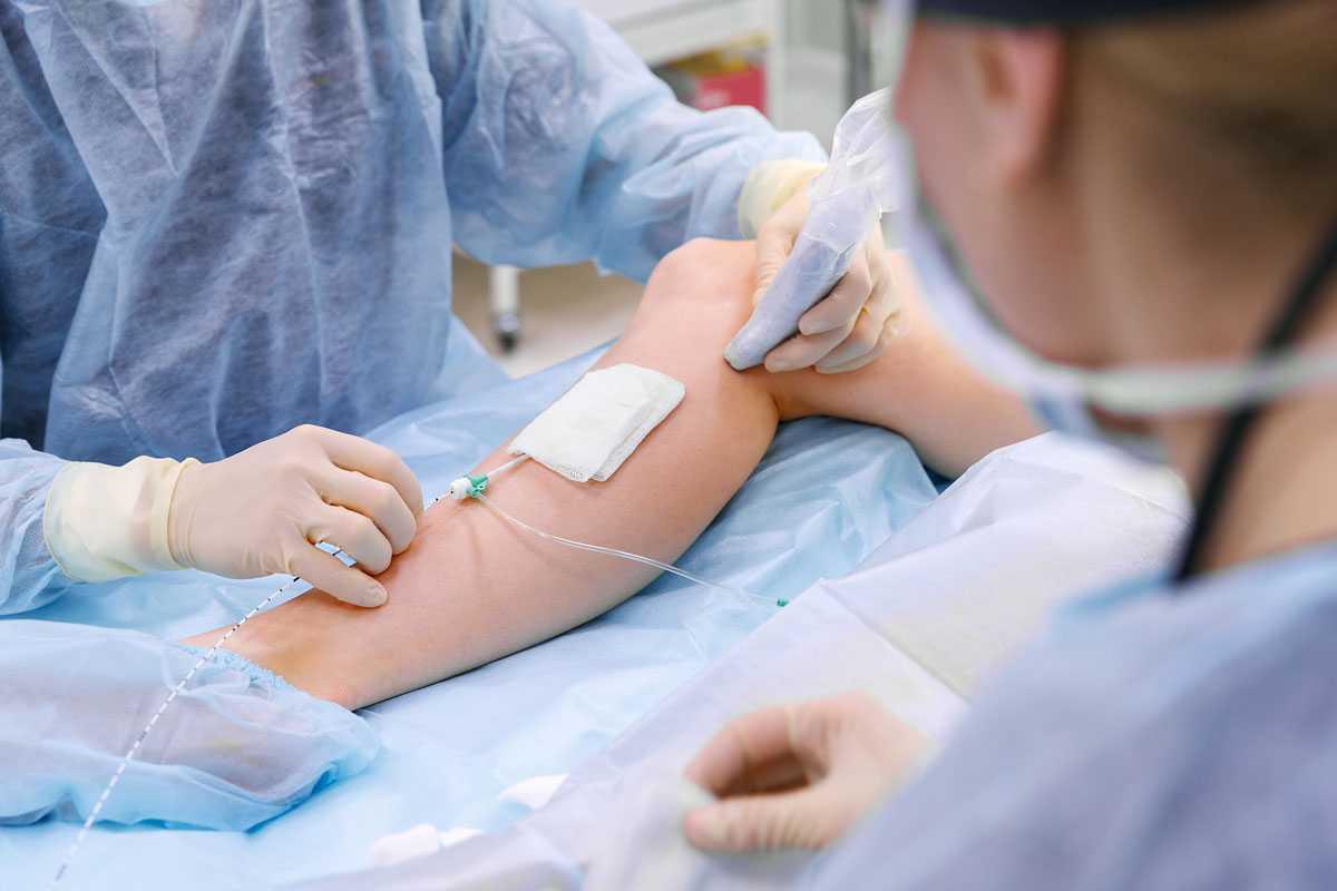 Тромбофлебит: симптомы, лечение и профилактика