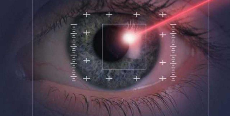Лазерная коррекция зрения: плюсы, минусы, противопоказания