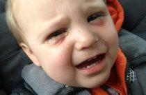 Детский конъюнктивит: Причины, виды, профилактика и лечение
