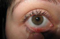 Халязион: симптомы, диагностика, лечение
