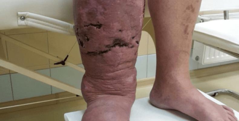 Лимфостаз конечностей: причины и лечение