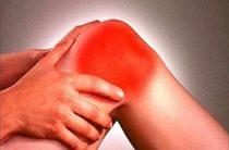 Как снять отек с коленного сустава