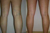 Склеротерапия вен на ногах