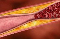 Тромбоз: на ногах симптомы, причины, лечение